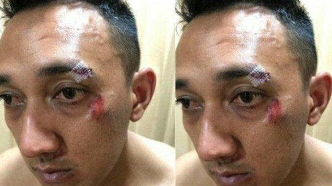Kapolsek Patumpak AKP Ginanjar Dikeroyok saat Gerebek Bandar Narkoba mengalami luka di kening .