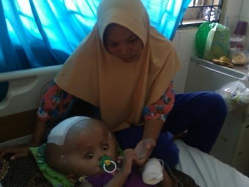 bocah berusia 2 tahun 9 bulan ini harus berjuang melawan penyakit hidrosefalus yang dideritanya.