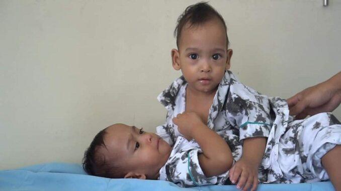 Bayi kembar siam asal Labuhanbatu Adam dan Aris (RSUP ADAMMALIK)