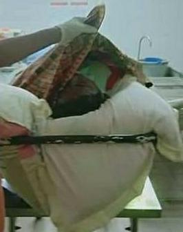 Ket foto; korban saat berada di rumah sakit A/N , A Tarigan sebelum di bawa ke rumah sakit Adam Malik guna otopsi. foto (ist) terkelinbukit