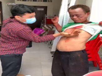 Tangkapan layar, Kosmas, penjaga Gereja Katedral Makassar alami pendarahan setelah sempat hadang pelaku bom bunuh diri